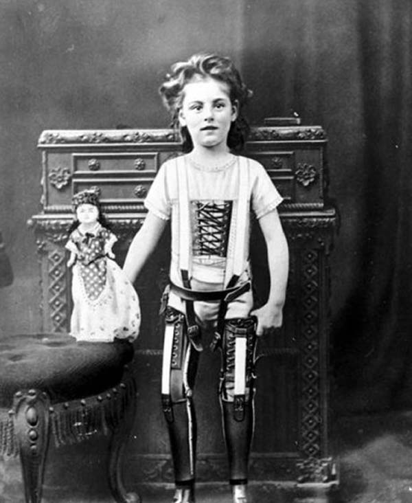 5.-A-child-with-artificial-legs-1898