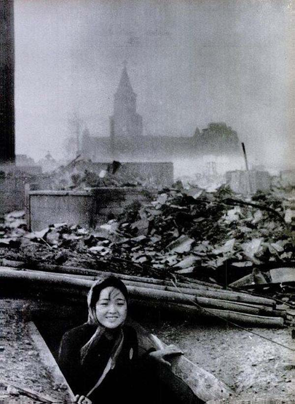 9.-A-woman-that-survived-the-Nagasaki-bombing-1945